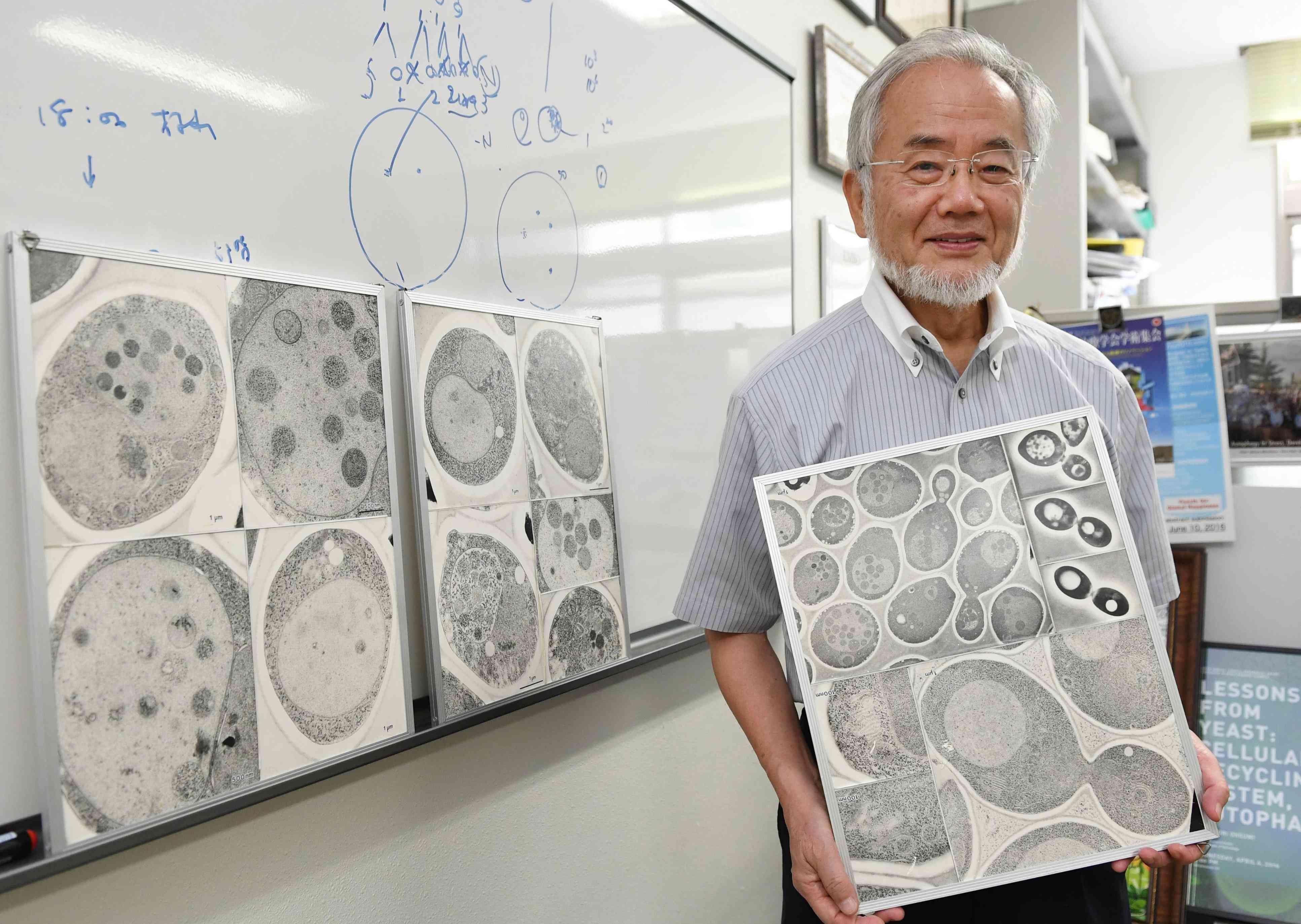 Ohsumi Premio Nobel de Medicina con la autofagia...