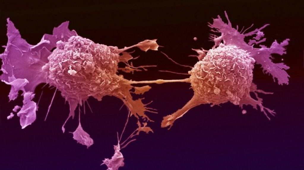 Scientists find antibody that hinders the spread of certain cancer cells...