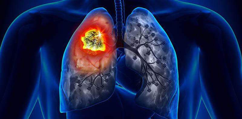 Fármaco que reduce la quimio en pulmón...