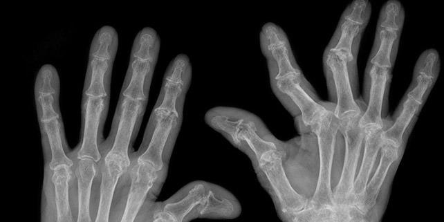 Nuevo biológico para la artritis psoriasica...