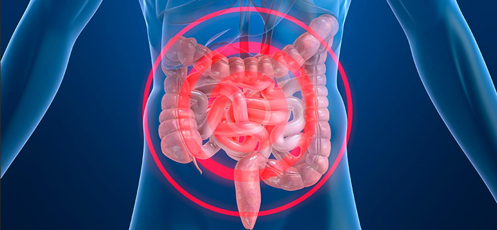 Las enfermedades inflamatorias intestinales aumentan en España...