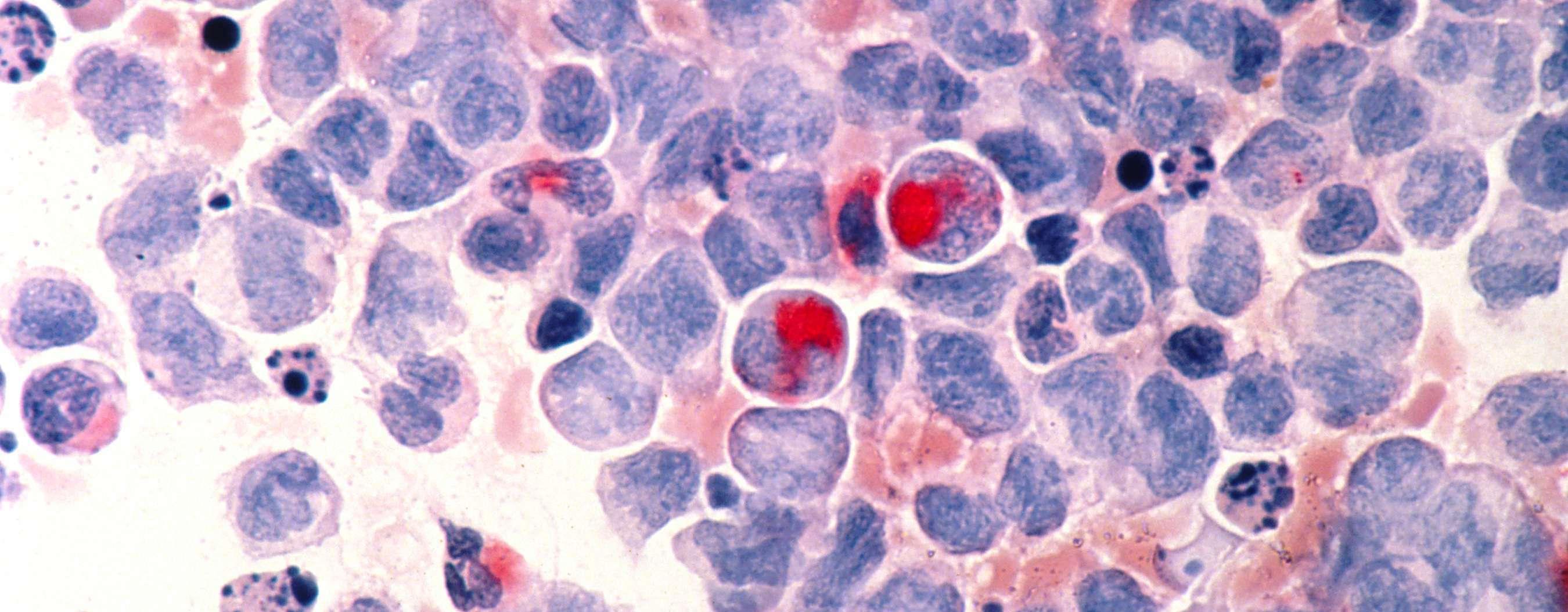 El primer tratamiento a la carta para la leucemia...