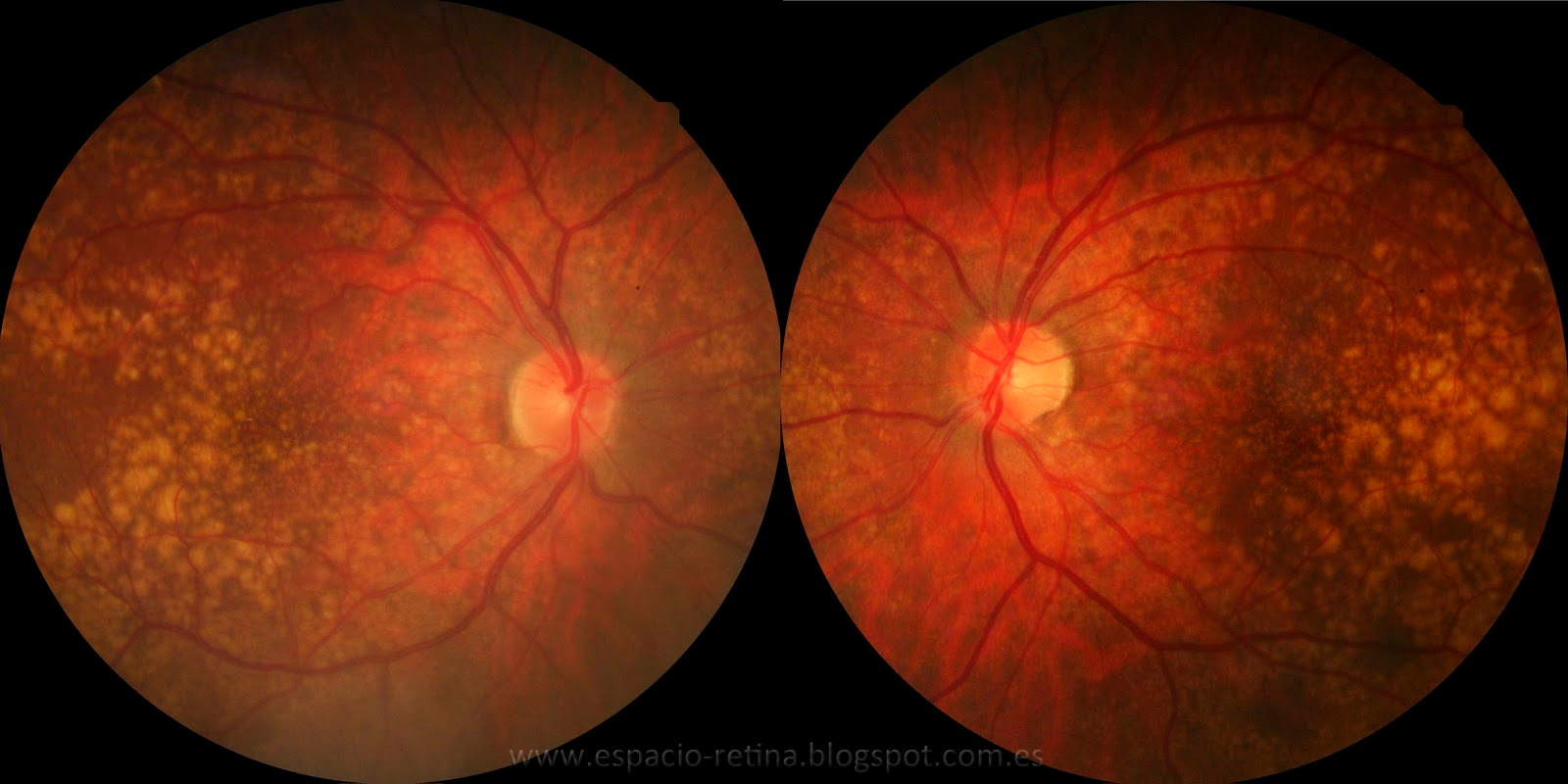 Fabrican células de la retina para regenerar la vista...