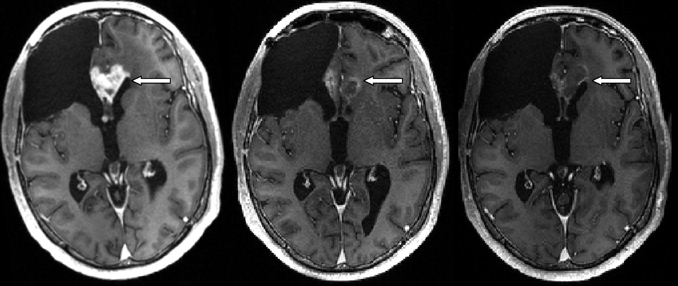 La mitad de los tumores cerebrales son benignos...