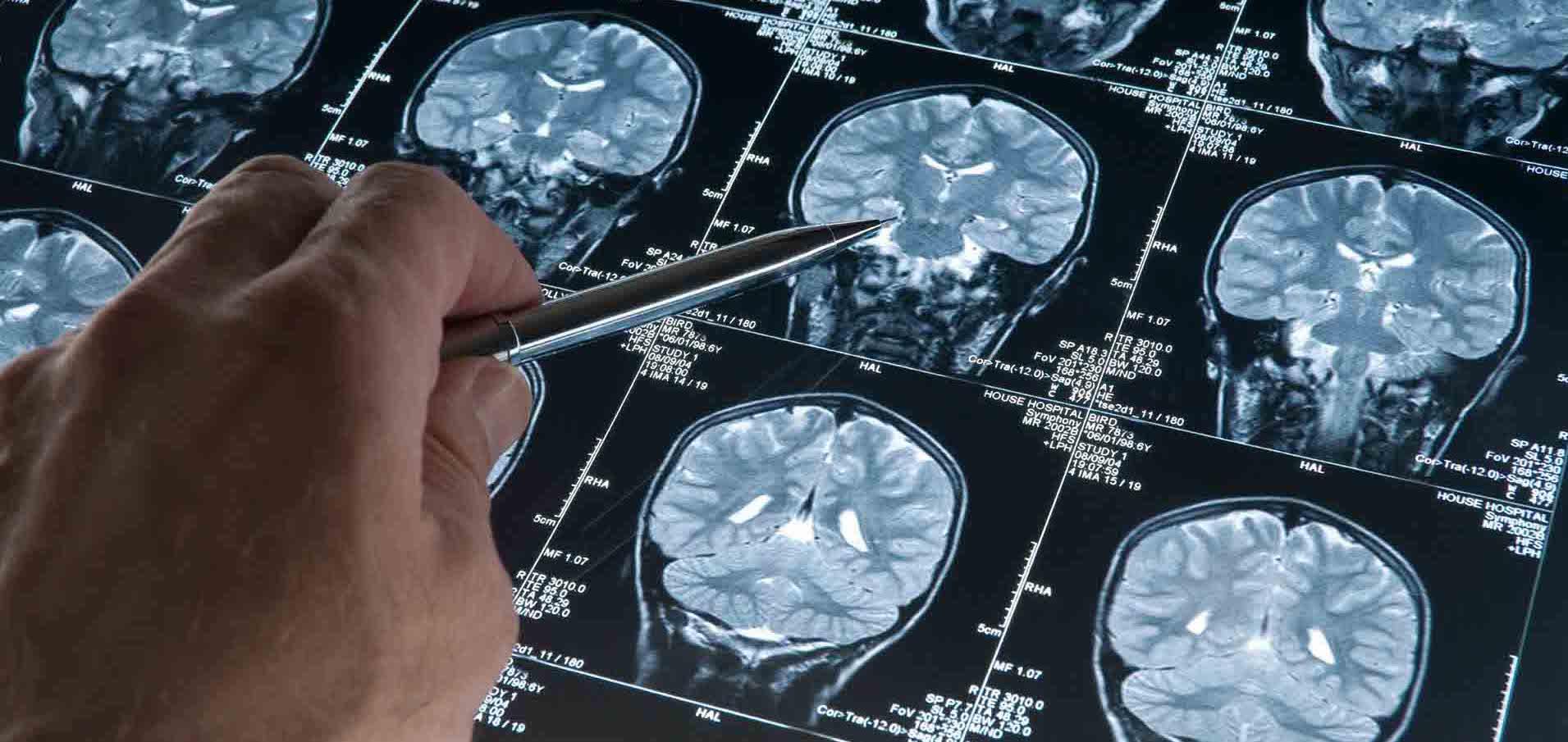 Fármaco evita la muerte de neuronas cerebrales en el alzhéimer...