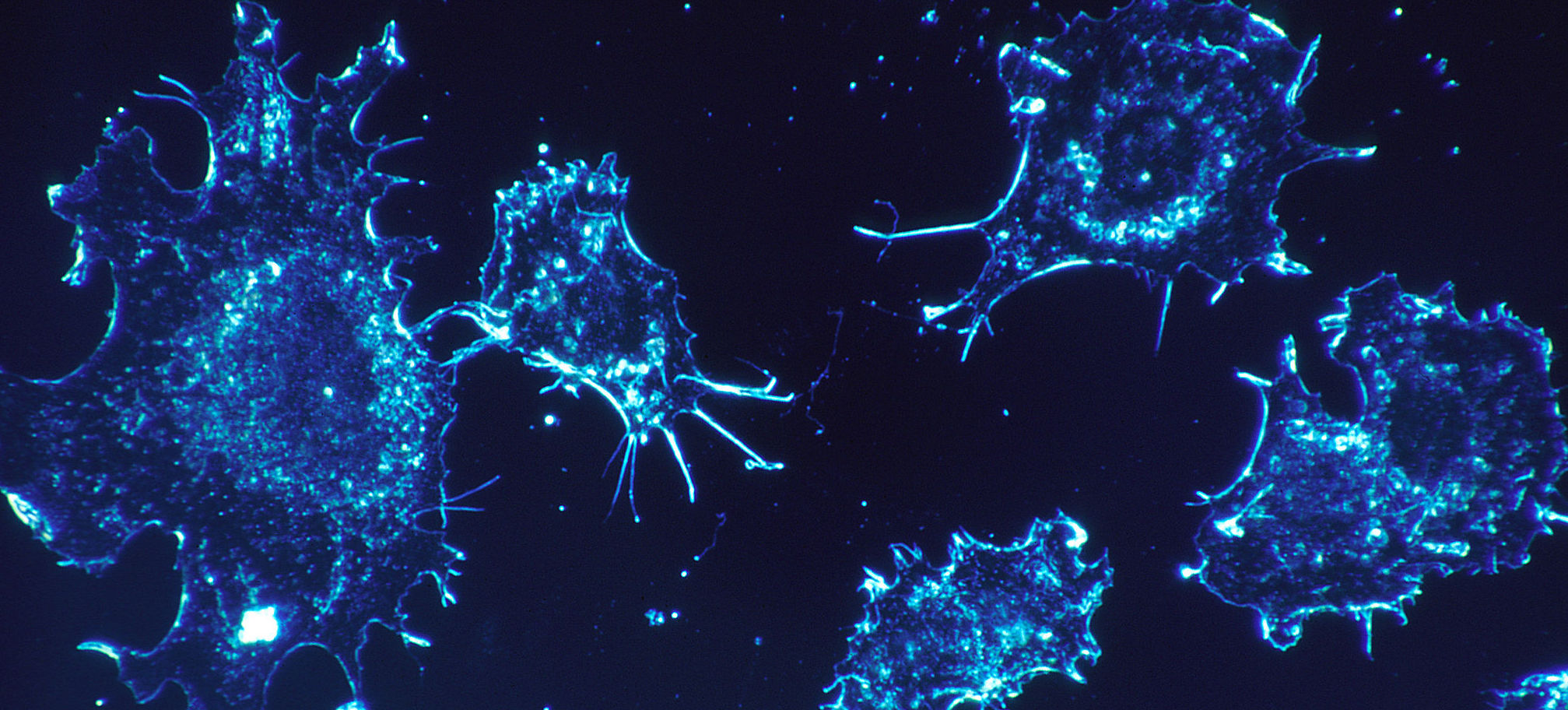 New immunotherapy treatment for cancer patients...