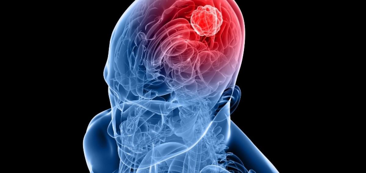 Píldora que revela si los afectados por trastornos mentales cumplen con la medicación...