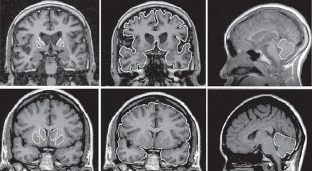 Drug for Huntington disease shows promise in landmark trial...
