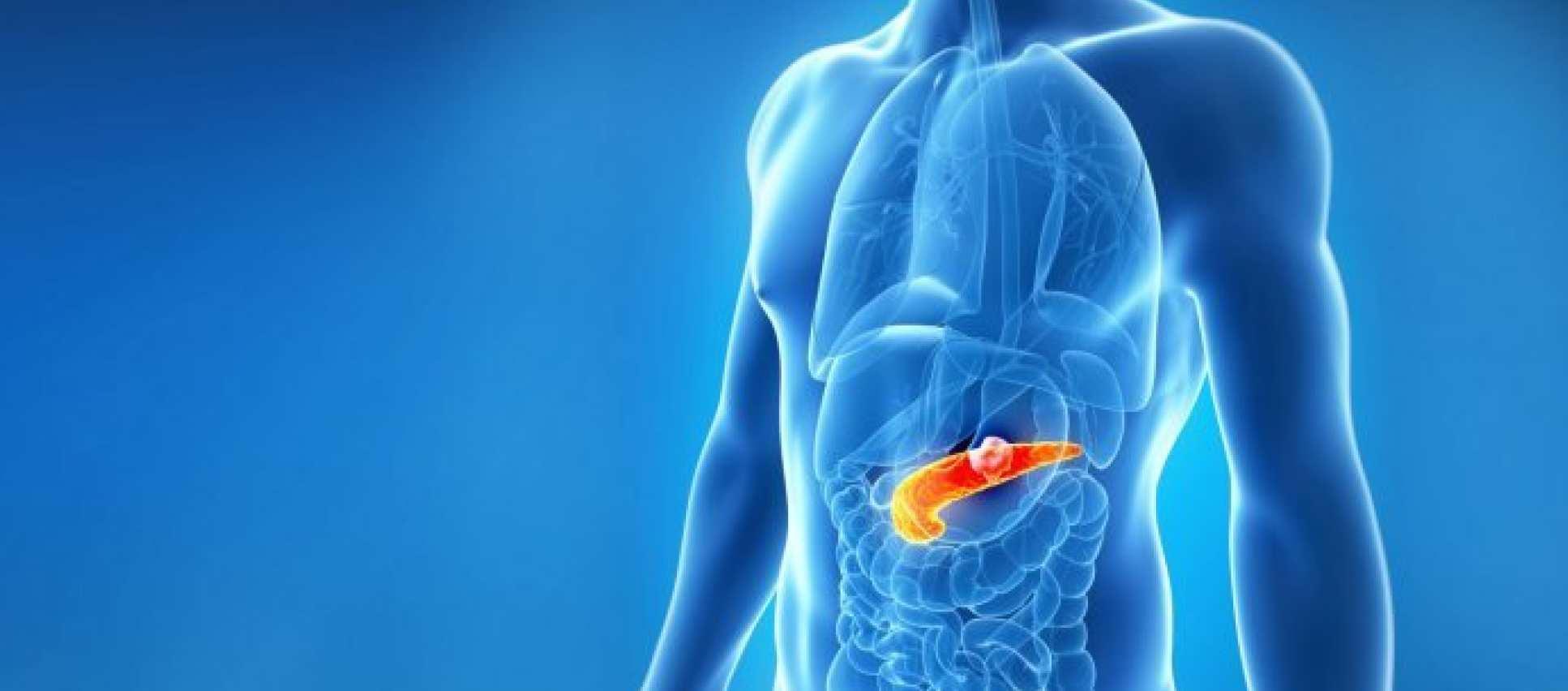Pancreatic cancer: Modified flu virus destroys tumors...