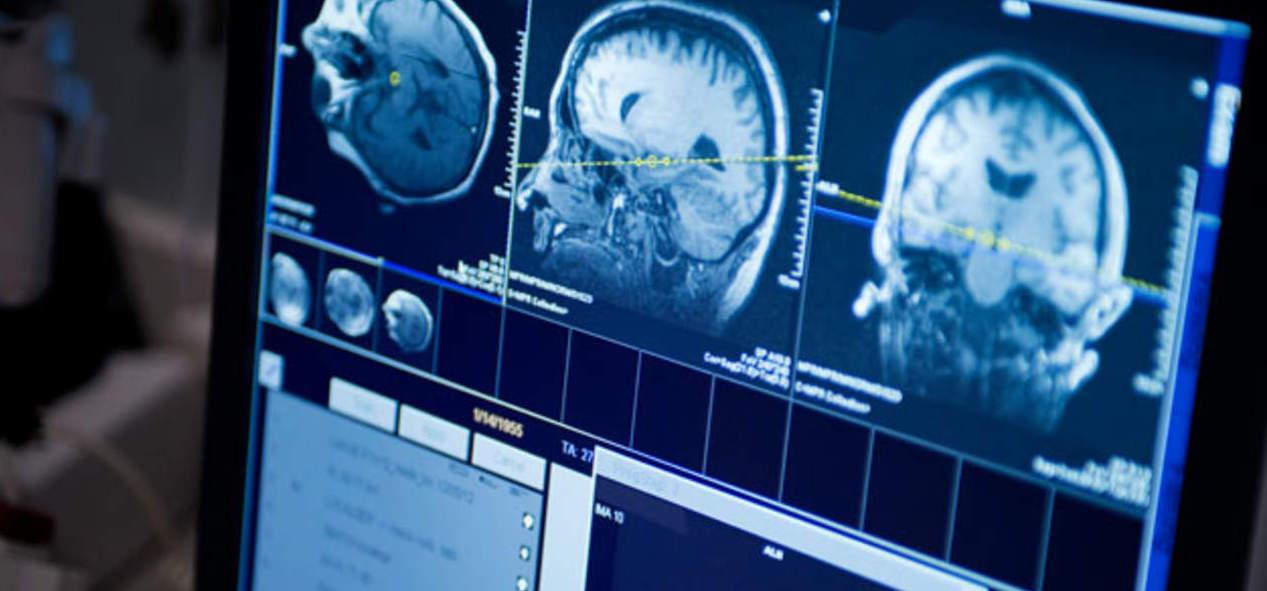 Vall d´Hebron estudia como controlar los tumores cerebrales...