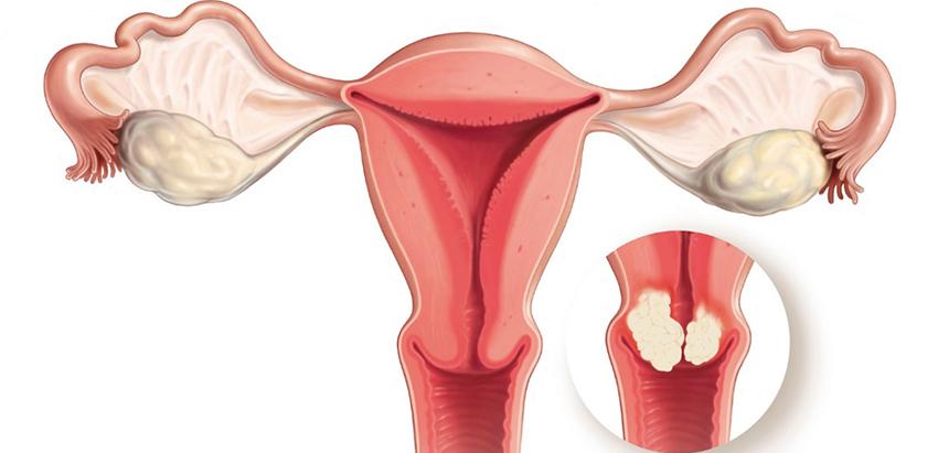 Test para la detección precoz del cáncer de ovario y de útero...