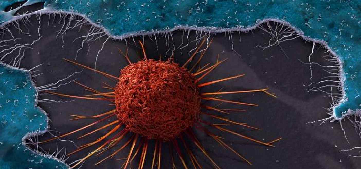 Why some cancers are 'born to be bad'...