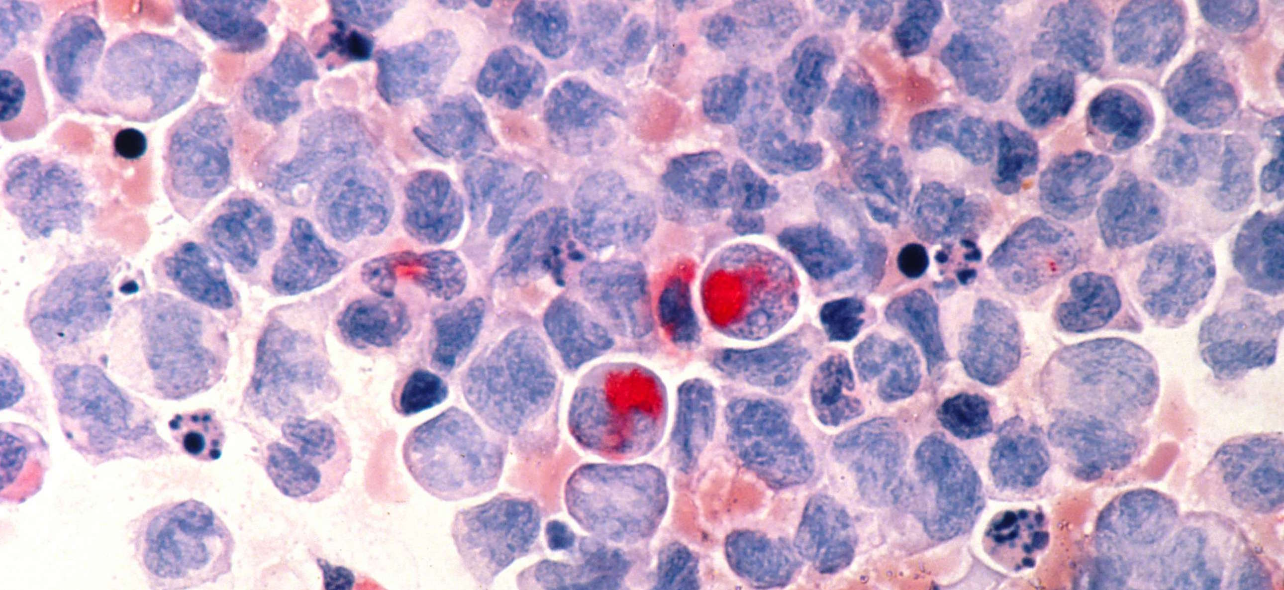 Primer paciente con leucemia curado gracias a la inmunoterapia T CAR...