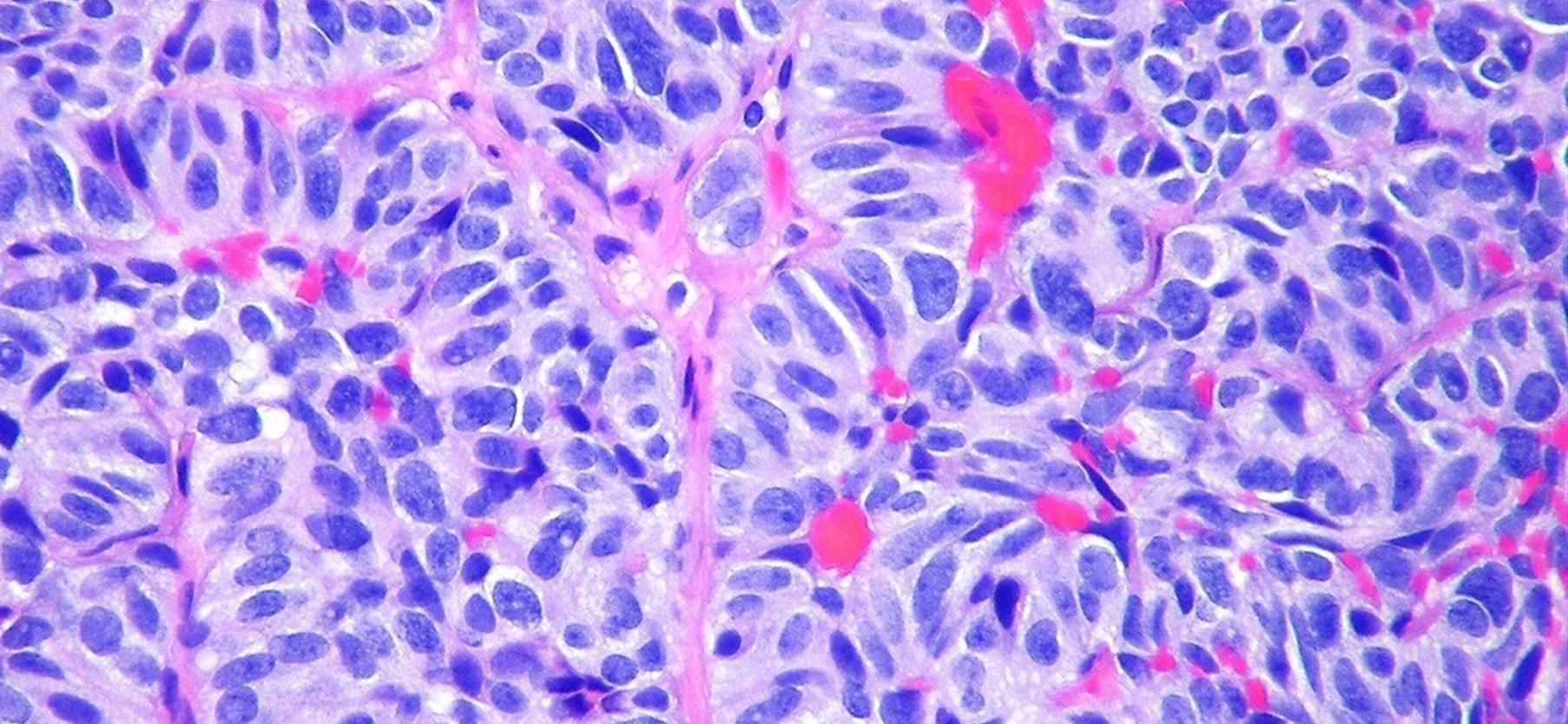 Fármaco capaz de prevenir las metástasis del cáncer de mama...