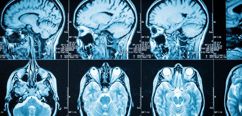Nueva estrategia para frenar las metástasis cerebrales...