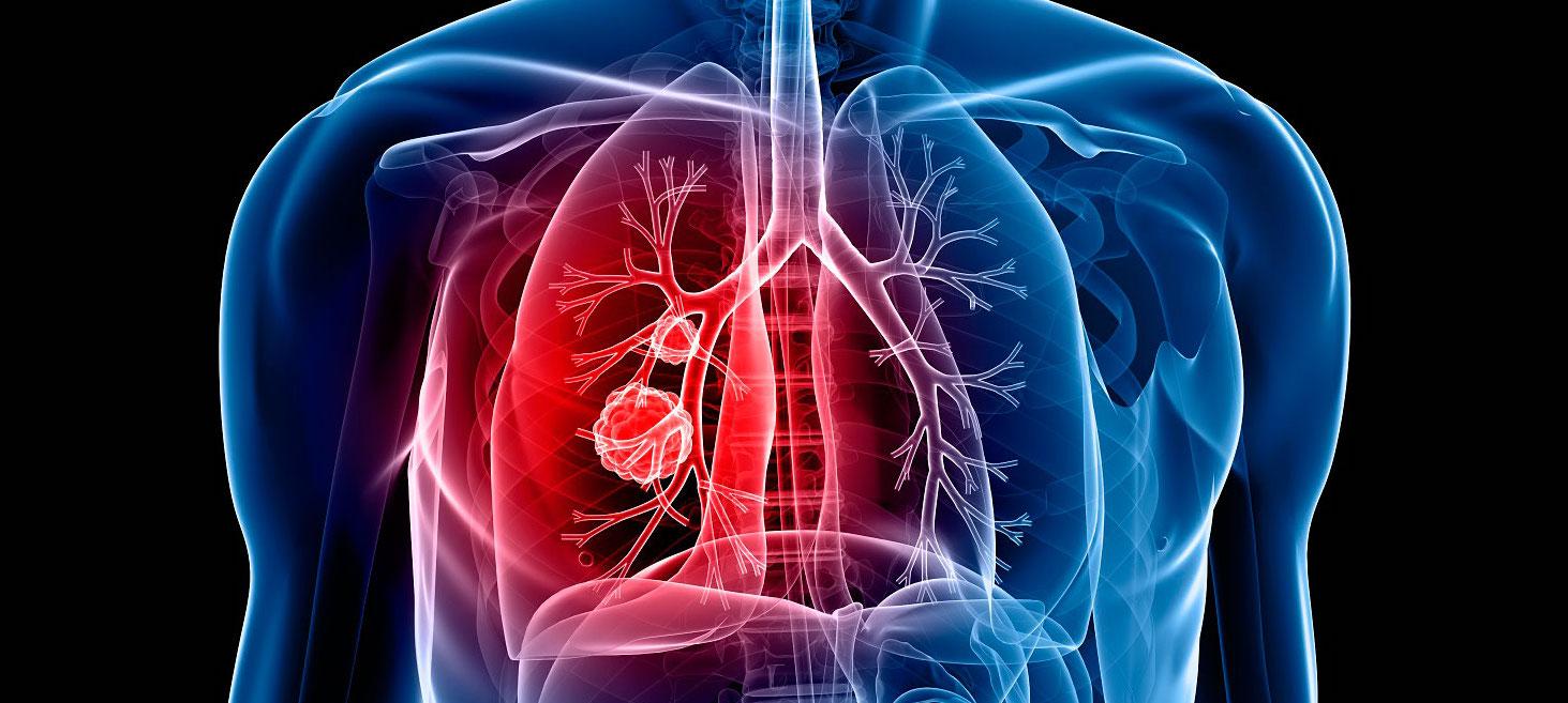 Hormona para potenciar la quimioterapia frente al cáncer de pulmón...