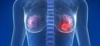 Dieta mediterránea para prevenir el cáncer de mama...