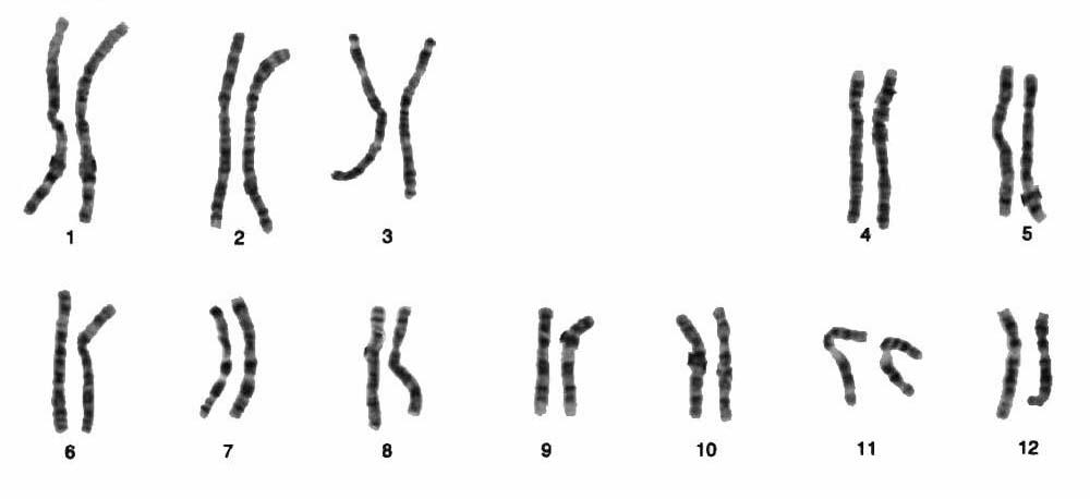 La disfunción eréctil, relacionada con una alteración genética...