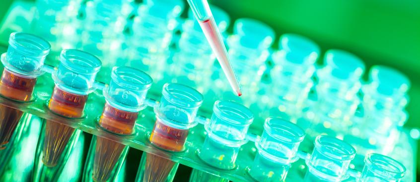 Identificada una de las proteínas que desencadena la esclerosis múltiple...
