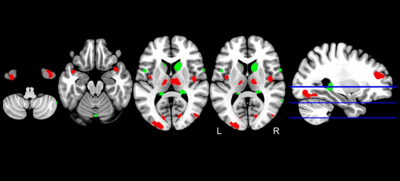 La inteligencia artificial detecta precozmente el alzhéimer...