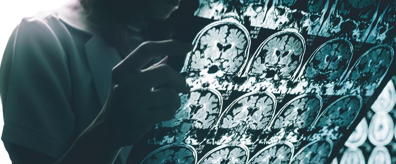 Estudio sobre si el Alzheimer puede llegar a contagiarse...
