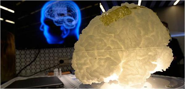 Un implante de grafeno revela la actividad oculta del cerebro...