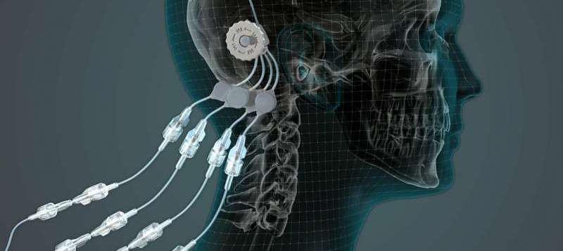 Nueva terapia para el Parkinson basada en una proteína de origen natural...
