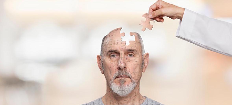 Cinco nuevos genes relacionados con el Alzheimer...