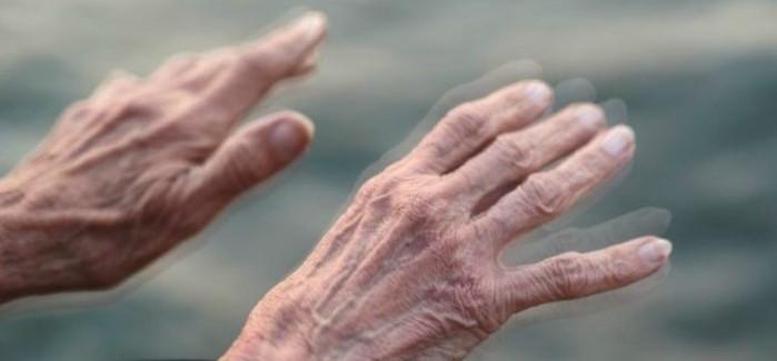 Parkinson: Un paciente tarda entre 1 y 3 años en ser diagnosticado...