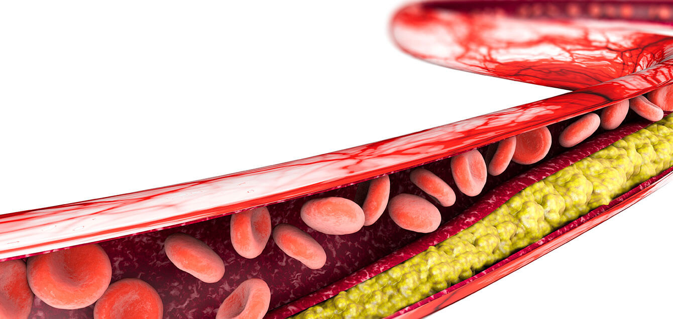 El colesterol 'malo' se asocia con el alzhéimer de inicio temprano...