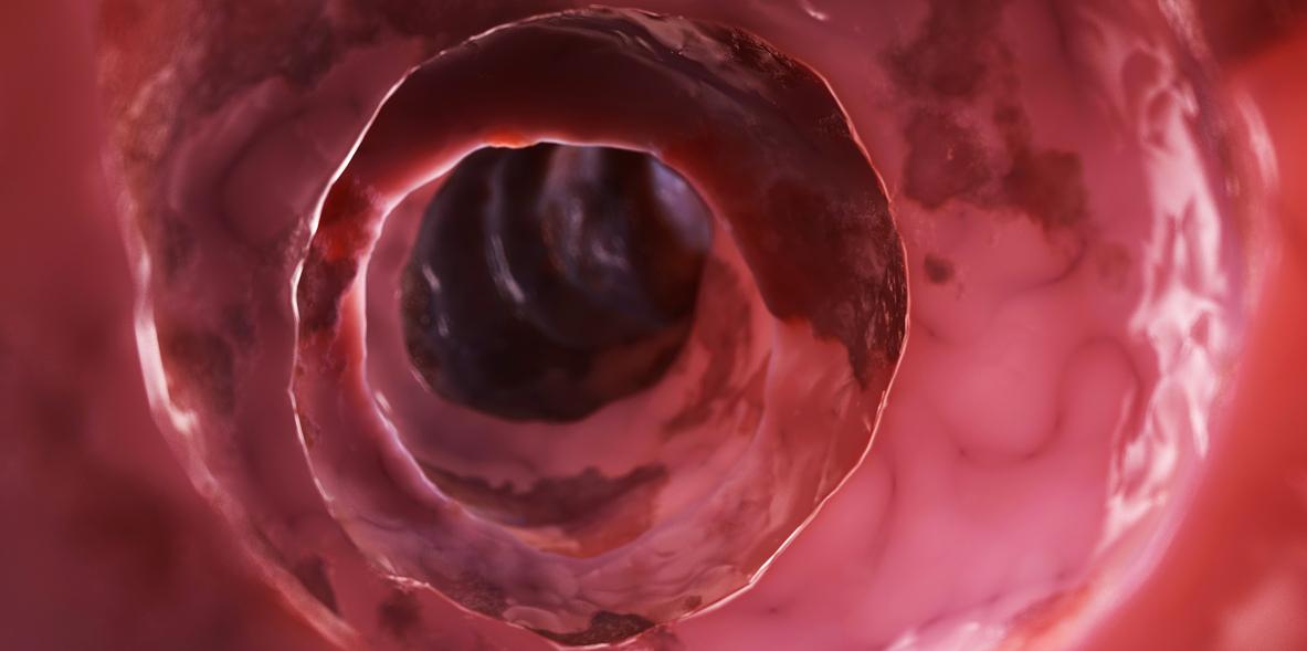 El intestino inflamado aumenta el riesgo de metástasis en cáncer de mama...