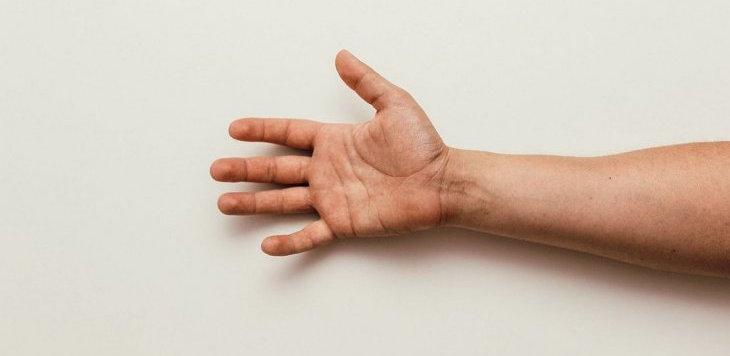 13 tetrapléjicos recuperan la función de brazos y manos mediante transferencia de nervios...