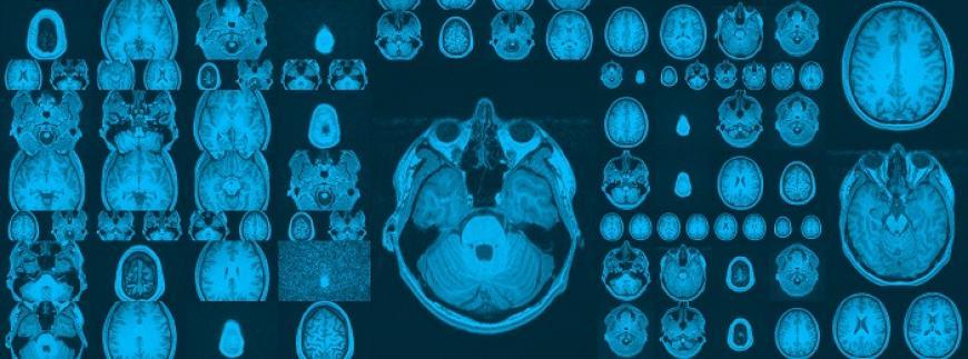 La 'caja negra' del cerebro desvela sus primeras claves...