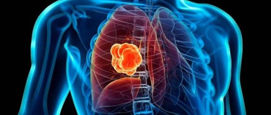Descubren un nuevo tipo de cáncer de pulmón muy agresivo que no afecta a fumadores...