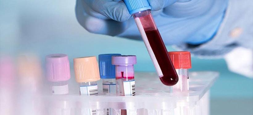 Un análisis de sangre detecta el cáncer de pulmón 4 años antes que las técnicas actuales...