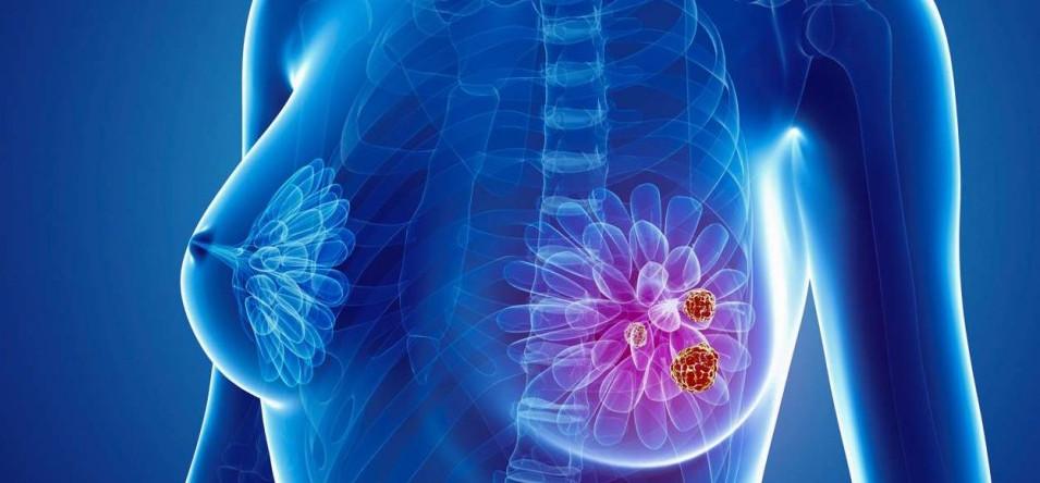 Descubren uno de los mecanismos de resistencia terapéutica del cáncer de mama triple negativo...