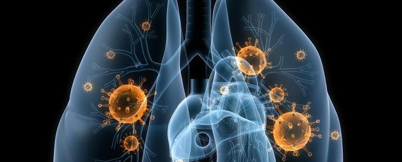 El ayuno temporal incrementa la eficacia de la inmunoterapia en cáncer de pulmón...