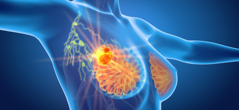 Nueva terapia para el cáncer de mama triple negativo...
