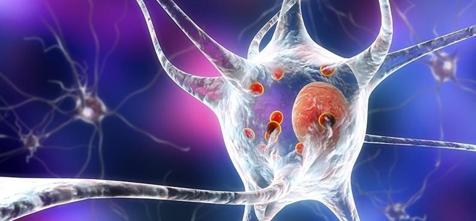 Nueva molécula para retrasar la progresión del Parkinson...