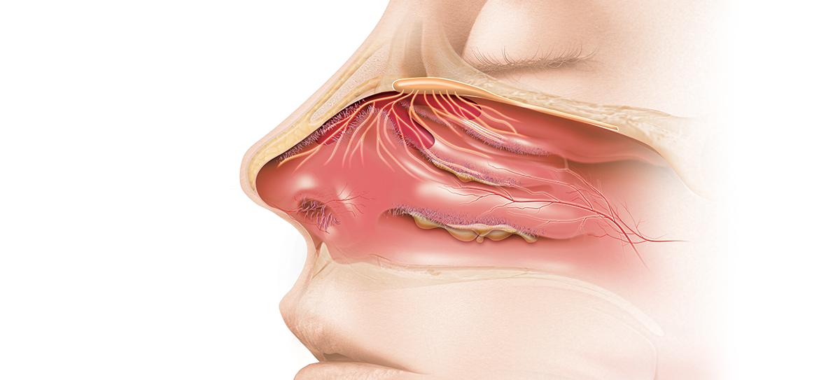 Aerosoles de lípidos en mucosas nasal y oral, 'barrera' para que el SARS-CoV-2 no penetre en el...