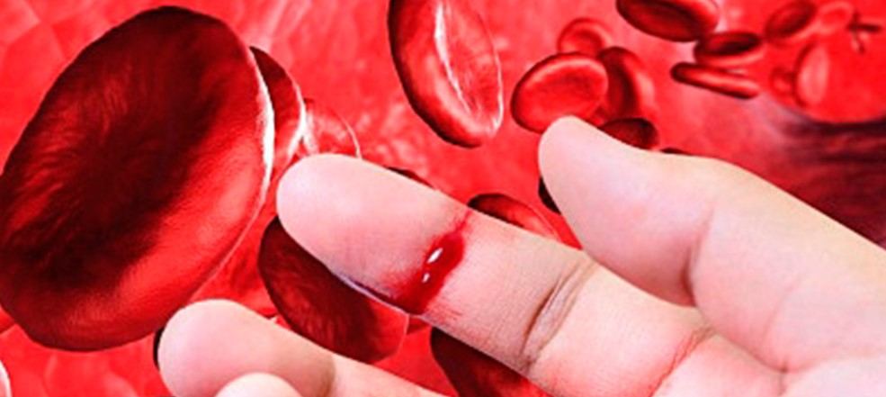 Online course on the management of hemophilia...