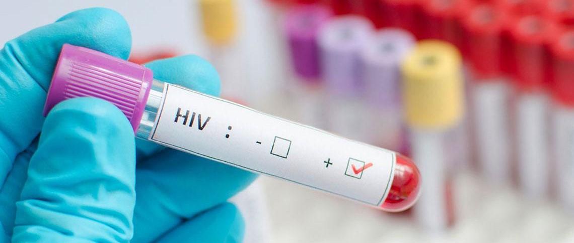 La pandemia del Covid-19 complica el reto de acabar con el sida para 2030...