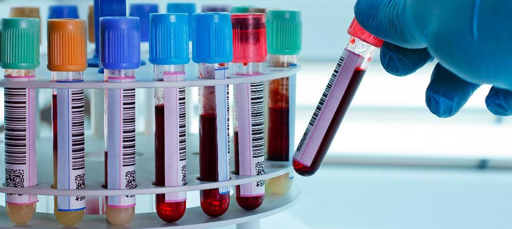 Un nuevo marcador en sangre detecta tres subgrupos de cáncer de mama en estadio inicial...