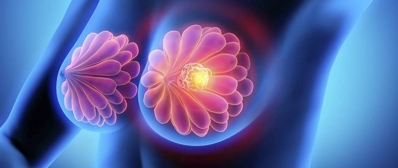 Una nueva tecnología podría evitar la quimioterapia en los pacientes con cáncer de mama...