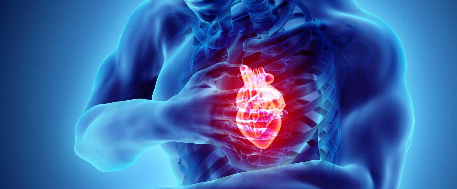 Casi 1 de cada 5 pacientes que mueren de muerte súbita cardíaca portan un gen sospechoso...