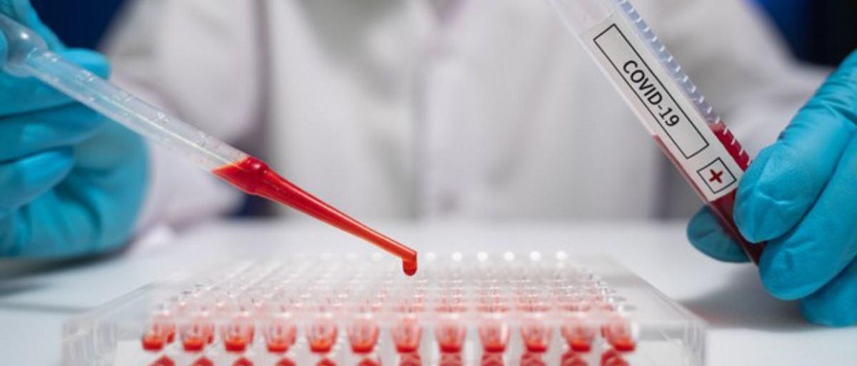 Alerta por la virulencia y la rápida expansión de la variante Delta del coronavirus...