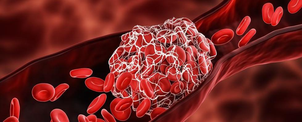 Una estrategia profiláctica ayuda a reducir los trombos en pacientes Covid...