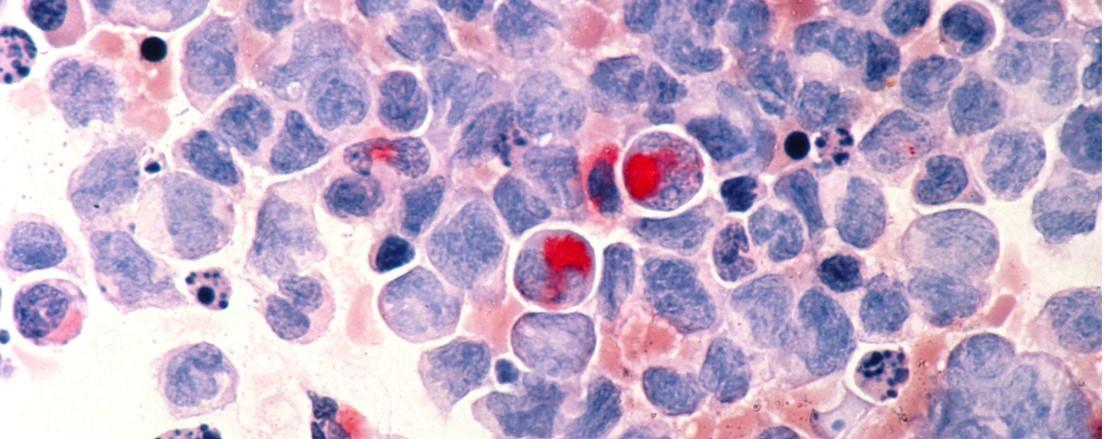 Estudio en pacientes con leucemia mieloide aguda aplicando inmunoterapia después de quimioterapia...