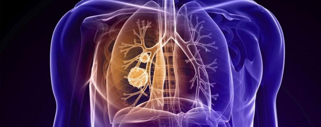 La inmunoterapia mejora el tratamiento del cáncer de pulmón...