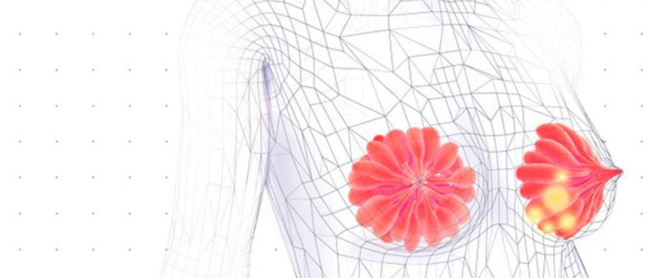 Las claves para el tratamiento del cáncer de mama...